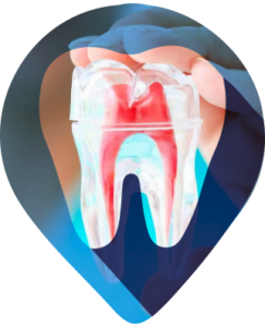 """ENDODONTIA Endo significa """"dentro/interno"""", e dontia é """"dente"""". Portanto, a endodontia visa tratar o dente internamente, curando lesões e doenças da polpa (o nervo) e da raiz do dente .É o famoso e mais popularmente conhecido tratamento de canal."""