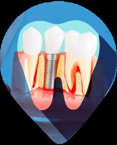 IMPLANTE A implantodontia é a especialidade odontológica que reabilita a saúde bucal quando há perda de um ou mais dentes. Os implantes são cilindros metálicos (titânio) que, ao serem instalados nos ossos maxilares, substituem as raízes de dentes ausentes.